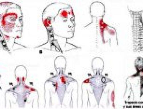 ¿Qué es el dolor miofascial?